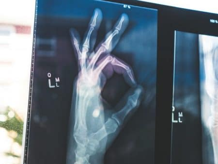 figures xray common health challenges faced by men over